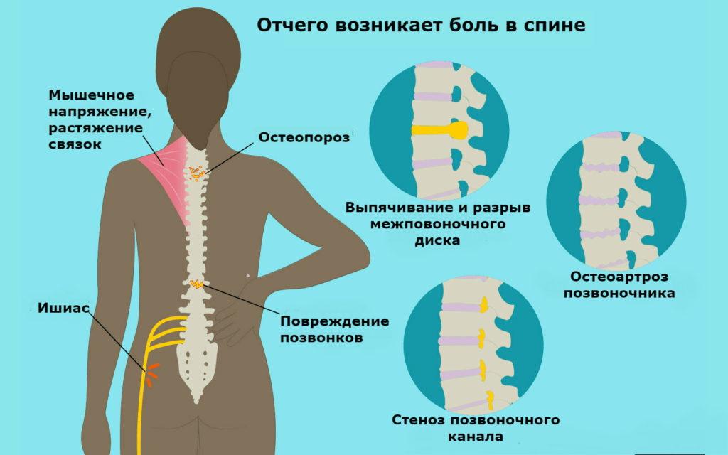 Причины возникновения остеопороза