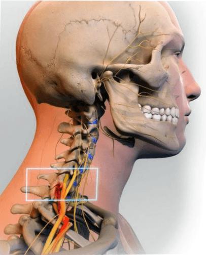 На фото шейный остеохондроз